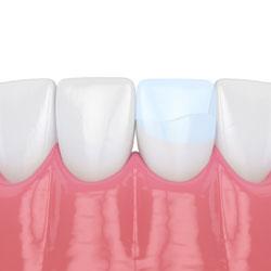 Common dental procedures tallahassee fl smiles by beck bonding solutioingenieria Gallery