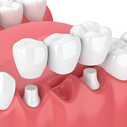 Common Dental Procedures - Tallahassee FL | Smiles By Beck